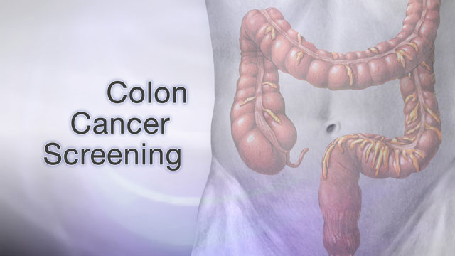 <div class=media-desc><strong>Colon cancer screening</strong><p>Colon cancer is one of the leading causes of cancer-related deaths in the United States. The good news is that early diagnosis through preventive screening often leads to a complete cure. Colorectal cancer starts in the large intestine, also known as the colon. Nearly all colon cancers begin as noncancerous, or benign, polyps, which slowly develop into cancer. Screening can detect these polyps and early cancers. The great thing is that we can remove polyps years before cancer even has a chance to develop! Your doctor can use several tools to screen for cancer. The first step is a stool test. This test checks your bowel movements for blood that you may not even be able to see in your stool. Polyps in the colon and small cancers can bleed tiny amounts of blood that you can't see with the naked eye. The most common method is called the fecal occult blood test. A second method is called a sigmoidoscopy exam. This test uses a flexible scope to look at the lower portion of your colon. But, because it looks only at the last one-third of the large intestine, it may miss some cancers. That's why this test is usually done along with a stool test. A colonoscopy is similar to sigmoidoscopy, but it can see the entire colon. That's why we usually do colonoscopies over sigmoidoscopies nowadays. You'll usually be mildly sedated during this test. Occasionally, your doctor may recommend, as an alternative, a double-contrast barium enema--which is a special x-ray of the large intestine, or a virtual colonoscopy, which uses a CAT scan and computer software to create a 3-D image of your large intestine. So, who should be screened for colon cancer? Well, beginning at age 50, men and women should have a screening test. People with an average risk of colon cancer should have a colonoscopy every 10 years, a double-contrast barium enema every 5 years, or a fecal occult blood test every year. Additional options are sigmoidoscopy every 5 to 10 years. People with certain risk factors for colon cancer may need screening before age 50, or more frequent testing. Such people include those with a family history of colon cancer, African-Americans, those with a history of previous colon cancer or polyps, or folks with a history of ulcerative colitis or Crohn's disease, which are both chronic inflammatory bowel diseases. The death rate for colon cancer has dropped in the past 15 years and this may be due to increased awareness and colon screening. In general, early diagnosis can lead to a complete cure.  </p></div>