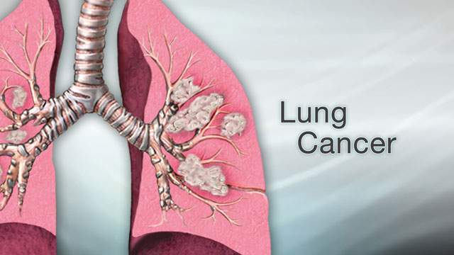 "<div class=media-desc><strong>Lung cancer</strong><p>Cancer can affect just about any part of the body, from the colon to the pancreas. Some cancers grow quickly, while others grow more slowly and are easier to treat. But of all the different cancers out there, one of the deadliest is lung cancer. Let's talk today about lung cancer. Cancer starts when cells begin to grow uncontrollably and form tumors. In the case of lung cancer, the tumors start in the lungs. Sometimes cancer starts somewhere else in the body and then spreads to the lungs. In that case, it's called metastatic cancer to the lung. ""Metastatic"" means disease that has spread. There are two types of lung cancer. The most common, and slower-growing form is non-small cell lung cancer. The other, faster-growing form is called small cell lung cancer.  The most common way to get lung cancer is to smoke cigarettes. The more cigarettes you smoke and the earlier you start smoking, the greater your risk is. Even being around someone who smokes and breathing in the secondhand smoke from their cigarettes increases your risk of getting lung cancer.  Even though smoking makes you much more likely to get lung cancer, you don't have to smoke or be exposed to smoke to get the disease. Some people who have lung cancer never lit up a cigarette in their life. They have been exposed to cancer-causing substances like asbestos, diesel fumes, arsenic, radiation, or radon gas. Or, they may not have had any known lung cancer risks. The most common signs of lung cancer are a cough that won't go away, chest pain, shortness of breath, weight loss, and fatigue. But just because you have these symptoms it doesn't mean that you have don't have lung cancer. These can also be signs of other conditions, like asthma or a respiratory infection. If you do have these symptoms, see your doctor. A chest x-ray, MRI, or CT scan can view the inside of your lungs to look for signs of cancer or other diseases.  What happens if you do have lung cancer? Doctors divide lung cancer into stages. The higher the stage, the more the cancer has spread. For example, a stage 1 cancer is small and hasn't spread outside of the lungs. A stage 4 cancer has spread to the other organs, such as the kidneys or brain.  Depending upon the type and stage of your lung cancer, you may need surgery to remove part or all of your lung. Or, your doctor may recommend radiation or chemotherapy to kill cancer cells. If you have lung cancer, how well you do depends upon the stage of your disease and the type of lung cancer that you have. Early-stage cancers have the highest survival and cure rates. Late-stage cancers are harder to treat.  Because lung cancer can be so deadly, prevention is key. The most important that thing you can do is to stop smoking, and avoid being around anyone who does smoke.  </p></div>"