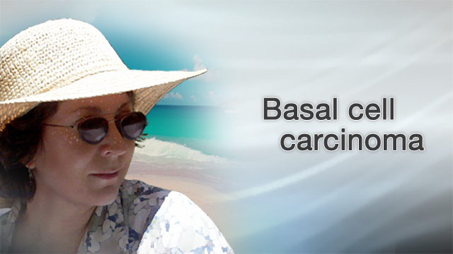 <div class=media-desc><strong>Basal cell carcinoma</strong><p>If you're like many Americans, you've spent hours in the sun trying to get the perfect, golden tan. But tanning has its downsides, including an increased risk of skin cancers like basal cell carcinoma. Most people who get skin cancer have the basal cell carcinoma form. The good news is that this type of skin cancer grows very slowly compared to the more dangerous melanoma type. The bad news is, it's still cancer. You're more likely to get basal cell carcinoma on the parts of your skin that are exposed to the sun, like your scalp, if you don't wear a hat when you go outside. People who are fair-skinned, with blond hair and blue eyes are also at greater risk for skin cancer than those with darker skin. To find out if you may have basal cell carcinoma, first, do a skin check. Look in a mirror and check your body for any bumps that look white, pink, or brown, or that have crusted over and bleed but don't heal. If you spot anything unusual on your skin, see your dermatologist. The doctor can perform a biopsy removing some or all of the growth and sending it to a lab where it can be checked for cancer. Basal cell carcinoma doesn't grow very quickly, and it's not likely to spread. Your doctor should be able to remove the bumps by cutting, scraping, or freezing it off. Once the cancer is removed, there's a good chance you'll be cured. But because skin cancer can come back, you always want to keep a close eye on your skin, and call your doctor if you notice any new growths.  A lot of diseases are beyond your control, but skin cancer is one condition you do have some control over. The best way to avoid getting it is to stop sun worshipping. Seek shade during the hours when the sun is strongest, usually from 10 a.m. to 4 p.m. and especially during the summer months. If you have to be outside during the middle of the day, slather on a thick layer of sunscreen with an SPF of at least 30, one that protects against both UVA and UVB rays. Reapply it often if you're in the water where the sunscreen can wash off. Also wear a wide-brimmed hat, sunglasses, and long sleeves. If you want a healthy glow, get one from a bottle. Rubbing on a tanning cream is safer than exposing your skin to the sun.  </p></div>