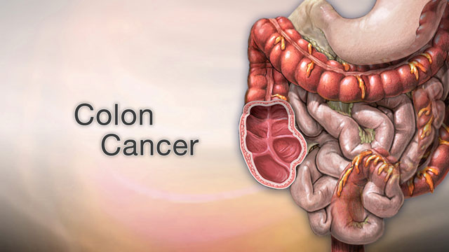 <div class=media-desc><strong>Colon cancer</strong><p>Colon cancer may not be talked about as often as other cancers, like breast cancer, prostate or lung cancer, but it's actually one of the leading causes of cancer deaths. It is for this reason it's very important to stay on top of your colon health.  The colon is your large intestine, the long, upside -down U-shaped tube that is toward the end of the line for getting rid of waste in your body. Colon cancer can start in the lining of the intestine, or at the end of it, called the rectum. Let's try to better understand Colon cancer. You're more likely to get the disease if you're over age 60, especially if you have a family history of colon cancer, inflammatory bowel disease, diabetes, or obesity. Smoking cigarettes and drinking alcohol has also been found to increase your risk of getting colon cancer. Although the data are not consistent, eating red meat or processed meats may increase the risks of colon cancer as well. Lean, unprocessed red meat, may be associated with less risk.  If you have symptoms, they may include pain in your abdomen, blood in your stool, weight loss, or diarrhea. But hopefully, you'll get diagnosed before you have any symptoms, during a regular screening test like a colonoscopy or sigmoidoscopy. These tests use special instruments to see inside your colon and rectum to look for any cancerous or pre-cancerous growths, called polyps.  If your doctor discovers that you do have colon cancer, unfortunately, you'll need to have a few more tests, including scans of your abdomen to find out whether the cancer has spread, and if so, where in your body it's located. So, how is colon cancer treated? That really depends on how aggressive your cancer is and how far it's spread, but usually colon cancer is removed with surgery, or killed with chemotherapy or radiation. You may get one, or a combination, of these treatments. Colon cancer is one of the more treatable cancers. You can be cured, especially if you catch it early. Spotting colon cancer when it's still treatable is up to you. If you're over age 50, you need to get screened with a colonoscopy. During this test, your doctor can find, and remove colon polyps before they have a chance to turn cancerous. And, regular physical activity and eating at least some fruits and vegetables daily, perhaps with unprocessed wheat bran, can help prevent it. If you want to prevent colon cancer, you'll also want to avoid processed and charred red meats, and smoking, and excess calories, and alcohol.  </p></div>