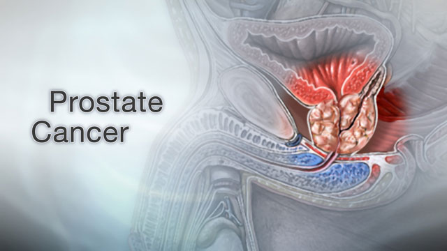 <div class=media-desc><strong>Prostate cancer</strong><p>As men get older, they have a lot of new worries to deal with, from hair loss, weight gain, perhaps even erectile dysfunction. In addition, cancer is one of the biggest concerns that older men face, especially prostate cancer, which is the leading cause of cancer death in men over 75. Younger men may not be very familiar with their prostate, the walnut-shaped gland that wraps around the urethra, the tube that carries urine out of the body. But as they get older, the prostate can start to cause problems. Men over the age of 60 are at increased risk for prostate cancer, especially if they're of African descent, they have a father or brother with the disease, or they eat a lot of burgers and processed meats in their daily diet.  It can be hard to pinpoint prostate cancer symptoms, because they usually start late in the disease and they can mimic symptoms of a benign, enlarged prostate, which is also more common in older men. Symptoms like a slow urine stream, dribbling, blood in the urine, or straining while urinating can be signs of either condition. An enlarged prostate can also confuse the results of a PSA test, which is used to screen for prostate cancer. So, if your doctor thinks you might have prostate cancer, you may need a biopsy, which is a procedure that removes a small piece of prostate tissue and sends it to the lab to check for cancer. Then a scoring system called the Gleason grade is used to tell how fast your cancer might spread. Your Gleason grade will help decide what treatment you get. Early-stage prostate cancers that haven't spread are often removed with surgery, and then treated with radiation therapy to kill any remaining cancer cells. Prostate cancer surgery may affect your ability to have sex and control urine, so talk about these issues with your doctor before you have the procedure. Because prostate cancer tends to grow very slowly, your doctor may want to just monitor you with PSA tests and biopsies, and avoid treatment unless the cancer starts to spread. Prostate cancer that has spread is usually treated with surgery, chemotherapy, or hormone therapy.  If your doctor discovers prostate cancer in its early stages, before it spreads, it's pretty easy to treat, and even cure. Treatments can also slow down prostate cancer that's spread, and extend your survival.  Before you have to deal with a prostate cancer diagnosis, ask your doctor for ways to prevent and screen for the disease. Eating a healthy, low-fat diet that's high in healthy omega-3 fatty acids might help lower your risk. There are also drugs called finasteride and dutasteride that are used in some men to prevent prostate cancer. Talk with your doctor about the pros and cons of these drugs, as well as the possible benefits and risks of having your PSA levels tested.  </p></div>